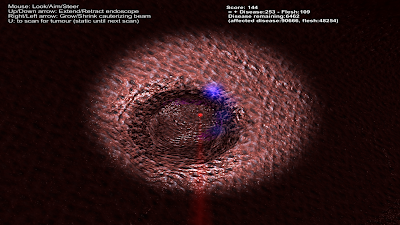 Hidden tumour mostly treated (as revealed by scanner)